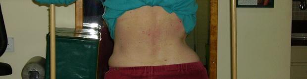 טיפול פיזיותראפי בשיטת Schroth מועיל בטיפול בבעיית עקמת